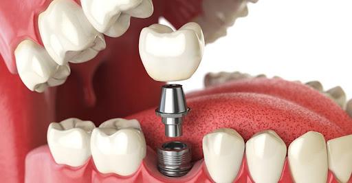 Dental Implant and Gum Care Centre in dehradun